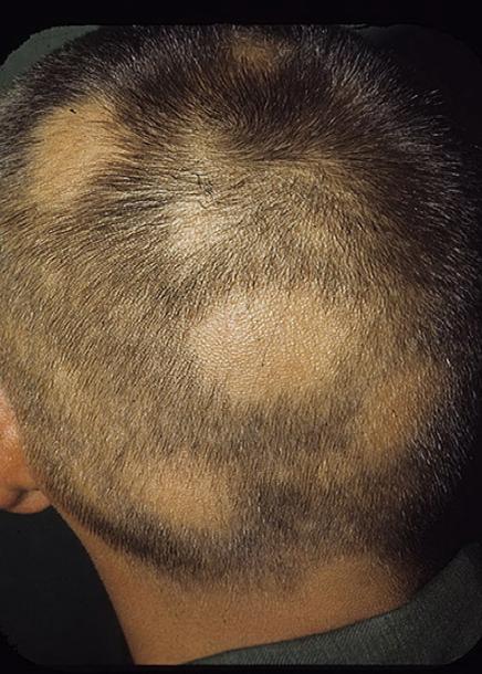 Общее выпадение волос